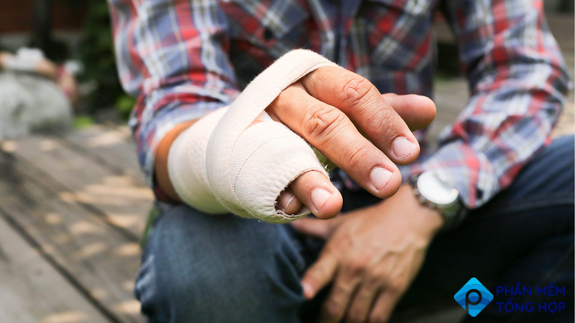 A man with his broken ring finger and pinky wrapped in a cast.